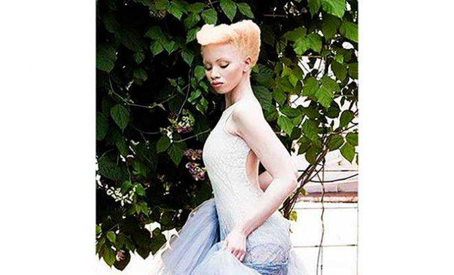 albinismo silvana de mari community